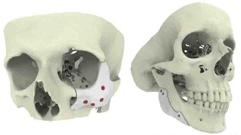 Cranial Implants
